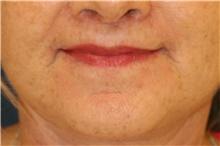 Lip Augmentation / Enhancement After Photo by Steve Laverson, MD; San Diego, CA - Case 42369
