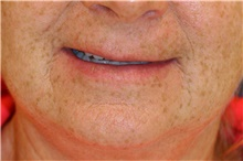 Lip Augmentation / Enhancement Before Photo by Steve Laverson, MD; San Diego, CA - Case 42369