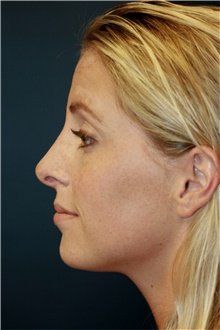 Rhinoplasty After Photo by Steve Laverson, MD; San Diego, CA - Case 42448