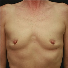 Breast Augmentation Before Photo by Steve Laverson, MD; San Diego, CA - Case 42449