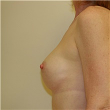 Breast Augmentation After Photo by Steve Laverson, MD; San Diego, CA - Case 42449