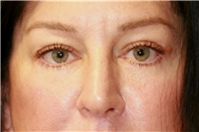 Eyelid Surgery After Photo by Steve Laverson, MD; San Diego, CA - Case 42450