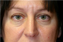 Eyelid Surgery Before Photo by Steve Laverson, MD; San Diego, CA - Case 42450