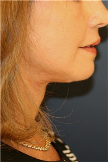 Neck Lift After Photo by Steve Laverson, MD; San Diego, CA - Case 42453