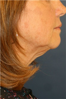Neck Lift Before Photo by Steve Laverson, MD; San Diego, CA - Case 42453