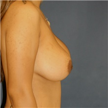 Breast Lift Before Photo by Steve Laverson, MD; San Diego, CA - Case 42461