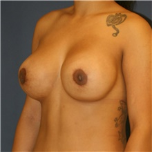 Breast Lift After Photo by Steve Laverson, MD; San Diego, CA - Case 42461