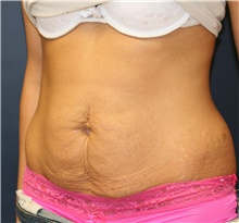 Tummy Tuck Before Photo by Steve Laverson, MD; San Diego, CA - Case 42527