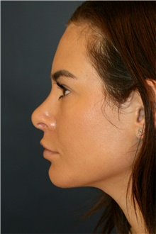 Rhinoplasty After Photo by Steve Laverson, MD; San Diego, CA - Case 42562