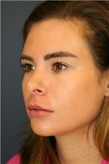 Rhinoplasty Before Photo by Steve Laverson, MD; San Diego, CA - Case 42562