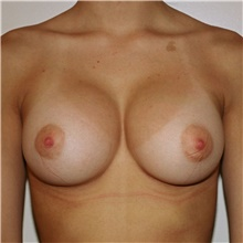 Breast Augmentation After Photo by Steve Laverson, MD; San Diego, CA - Case 42582