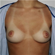 Breast Augmentation Before Photo by Steve Laverson, MD; San Diego, CA - Case 42582