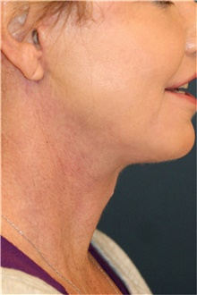 Neck Lift After Photo by Steve Laverson, MD; San Diego, CA - Case 42591