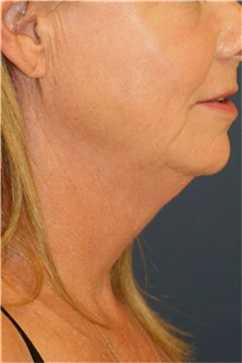 Neck Lift Before Photo by Steve Laverson, MD; San Diego, CA - Case 42591