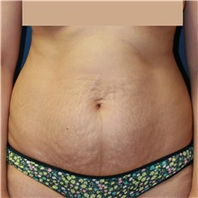 Tummy Tuck Before Photo by Steve Laverson, MD; San Diego, CA - Case 42604
