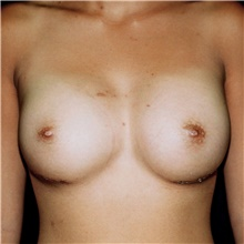 Breast Augmentation After Photo by Steve Laverson, MD; San Diego, CA - Case 42630