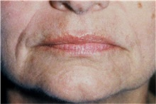 Lip Augmentation / Enhancement Before Photo by Steve Laverson, MD; San Diego, CA - Case 42631