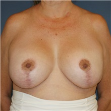Breast Lift After Photo by Steve Laverson, MD; San Diego, CA - Case 42651