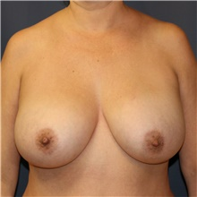 Breast Lift Before Photo by Steve Laverson, MD; San Diego, CA - Case 42651