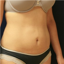 Tummy Tuck Before Photo by Steve Laverson, MD; San Diego, CA - Case 42656