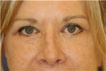 Eyelid Surgery After Photo by Steve Laverson, MD; San Diego, CA - Case 42661