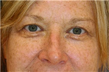 Eyelid Surgery Before Photo by Steve Laverson, MD; San Diego, CA - Case 42661