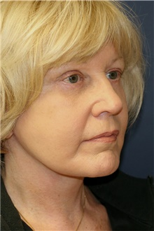 Facelift After Photo by Steve Laverson, MD; San Diego, CA - Case 42665
