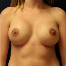 Breast Augmentation After Photo by Steve Laverson, MD; San Diego, CA - Case 42673
