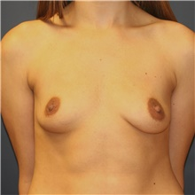 Breast Augmentation Before Photo by Steve Laverson, MD; San Diego, CA - Case 42673