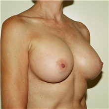 Breast Augmentation After Photo by Steve Laverson, MD; San Diego, CA - Case 42710