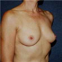 Breast Augmentation Before Photo by Steve Laverson, MD; San Diego, CA - Case 42710