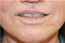 Lip Augmentation / Enhancement After Photo by Steve Laverson, MD; San Diego, CA - Case 43079