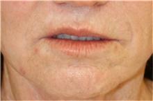Lip Augmentation / Enhancement Before Photo by Steve Laverson, MD; San Diego, CA - Case 43079