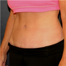 Tummy Tuck After Photo by Steve Laverson, MD; San Diego, CA - Case 43599