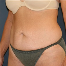 Tummy Tuck Before Photo by Steve Laverson, MD; San Diego, CA - Case 43599