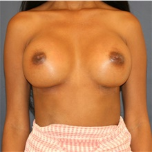 Breast Implant Revision After Photo by Steve Laverson, MD; San Diego, CA - Case 43641