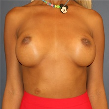Breast Implant Revision Before Photo by Steve Laverson, MD; San Diego, CA - Case 43641