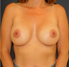Breast Augmentation After Photo by Steve Laverson, MD; San Diego, CA - Case 43960