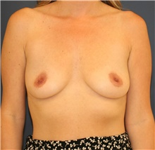 Breast Augmentation Before Photo by Steve Laverson, MD; San Diego, CA - Case 43960