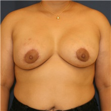 Breast Lift After Photo by Steve Laverson, MD; San Diego, CA - Case 43961