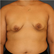 Breast Lift Before Photo by Steve Laverson, MD; San Diego, CA - Case 43961