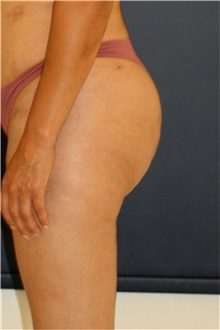Buttock Lift with Augmentation After Photo by Steve Laverson, MD; San Diego, CA - Case 44345