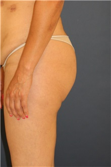 Buttock Lift with Augmentation Before Photo by Steve Laverson, MD; San Diego, CA - Case 44345