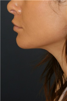Chin Augmentation After Photo by Steve Laverson, MD; San Diego, CA - Case 44369