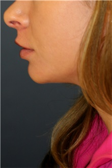 Chin Augmentation Before Photo by Steve Laverson, MD; San Diego, CA - Case 44369