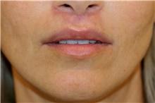 Lip Augmentation / Enhancement After Photo by Steve Laverson, MD; San Diego, CA - Case 44552