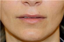 Lip Augmentation / Enhancement Before Photo by Steve Laverson, MD; San Diego, CA - Case 44552