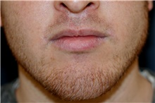 Lip Augmentation / Enhancement After Photo by Steve Laverson, MD; San Diego, CA - Case 44693