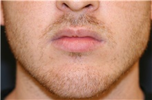 Lip Augmentation / Enhancement Before Photo by Steve Laverson, MD; San Diego, CA - Case 44693