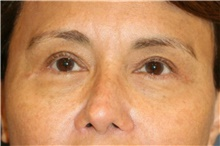 Eyelid Surgery After Photo by Steve Laverson, MD; San Diego, CA - Case 44706
